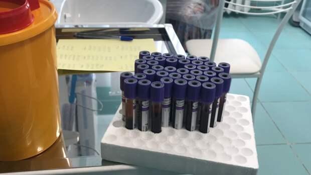 Иммунологи объяснили разницу антител к коронавирусу у привитых и переболевших