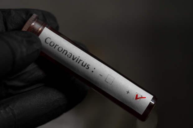 Более 300 вернувшихся в Удмуртию туристов не предоставили результаты тестов на коронавирус