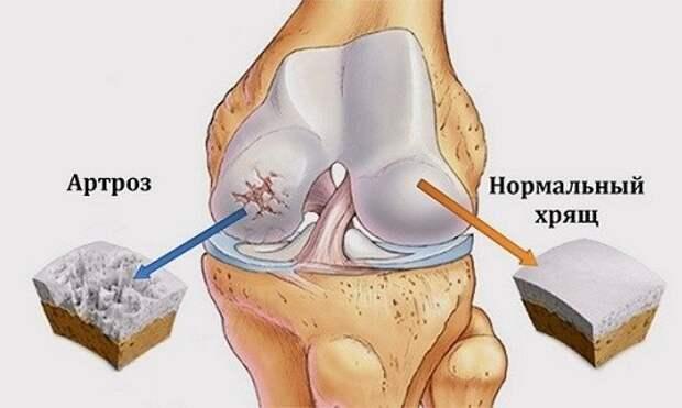 Болят ноги: 14 возможных причин от плоскостопия до диабета