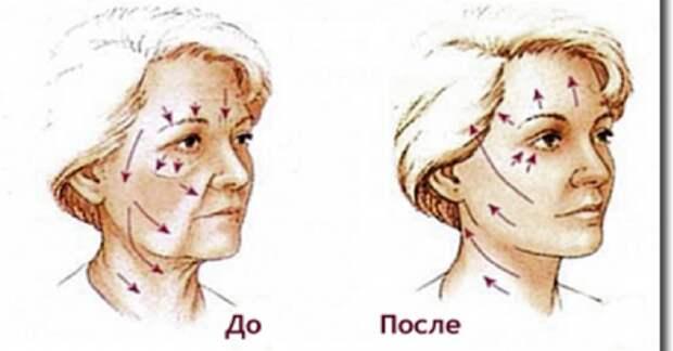 Этот способ помог мне быстро подтянуть кожу лица и избавиться от морщин! Теперь делаю так каждый вечер!