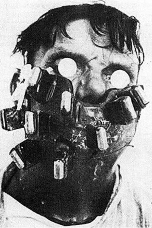 14. Маска из радия для лечения рака лица (1920 г.) медицина прошлого, медицинская процедура, медицинские истории