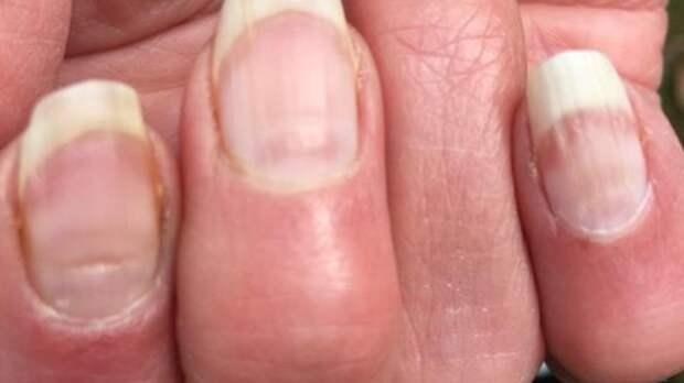 """Британский профессор объяснил последствия """"ковидных ногтей"""""""