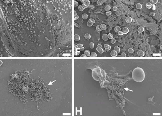 Спайк-белок коронавируса сам по себе вызвал нарушения свертываемости крови