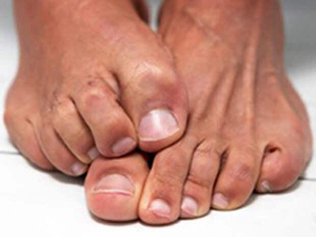Вот что уничтожит любой грибок на ваших ногах.