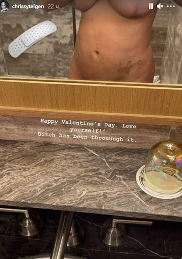 """""""Любите себя"""": Крисси Тейген честно показала шрамы от операций после потери ребенка"""