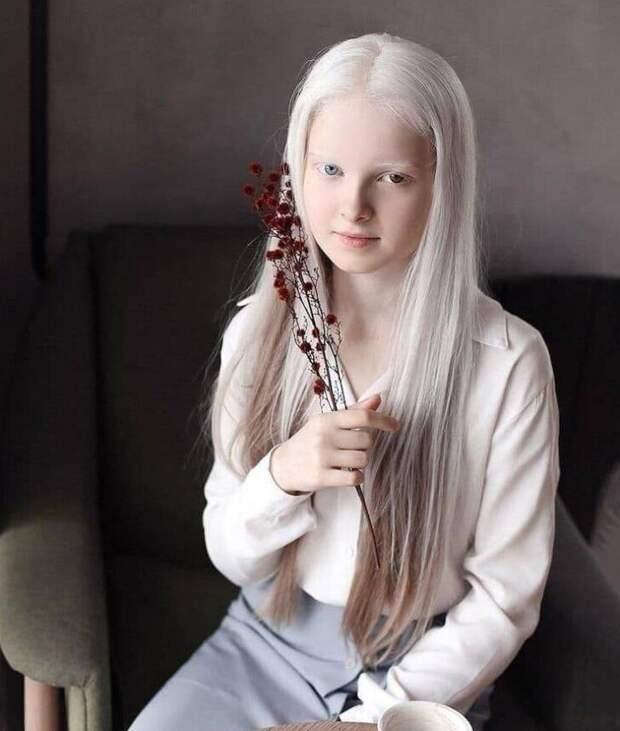 Русалочка: 11-летняя девочка с альбинизмом и гетерохромией (разным цветом глаз)