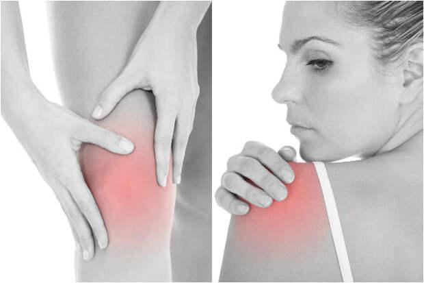 Артроз и остеопороз. Возрастные проблемы, о которых нужно знать каждой женщине