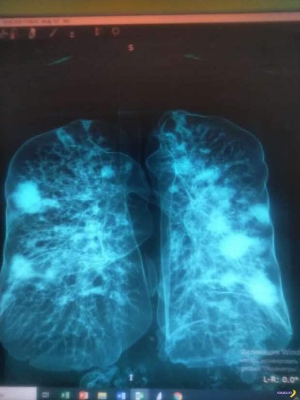 Здоровые лёгкие и тяжело побитые COVID-19 лёгкие