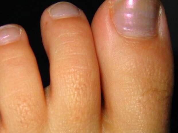 Следи за ногами. 10 признаков болезней, которые нельзя упустить
