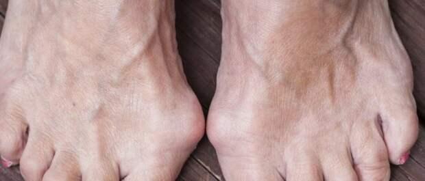 Косточки на ногах народные средства
