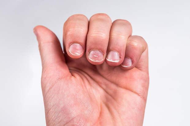 Грызть ногти: почему это опасно, и как избавиться от этой привычки