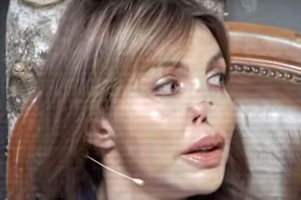 """Экс-жена Аршавина: """"У меня ноги перевязаны, лица нет, а живот разрезан вдоль"""""""
