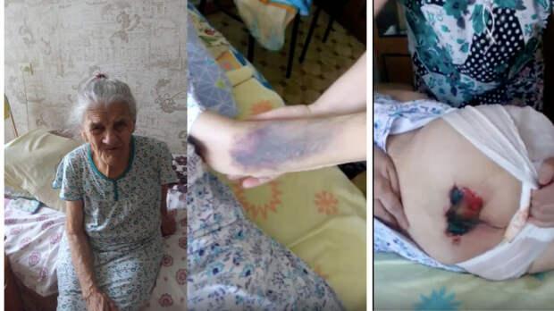 «Стала овощем»: женщина обвинила врачей в некачественной медпомощи своей родственнице
