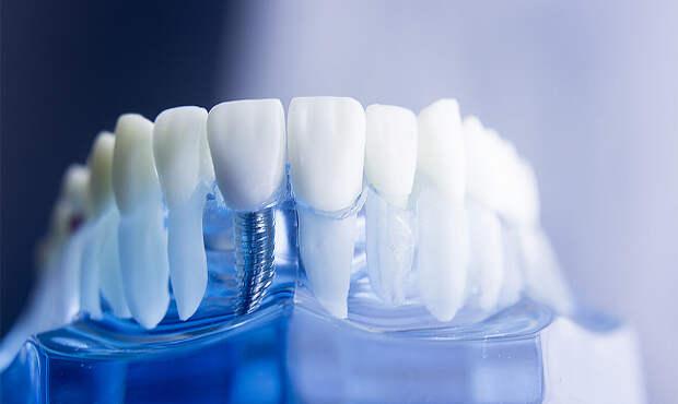 3 преимущества зубных имплантов