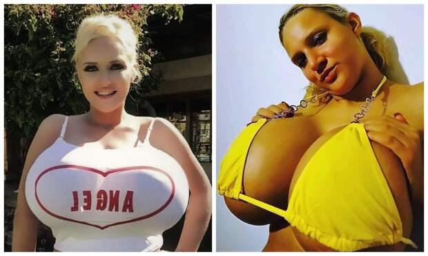 Большая изюминка: У британки такая огромная грудь, что она не может водить машину