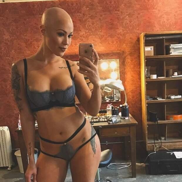 В 14 лет ей диагностировали алопецию - патологическое выпадение волос алопеция, волосы, девушка, история, модель, секрет, фото
