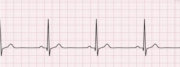 10 сигналов, которыми тело сообщает о сильной нехватке йода