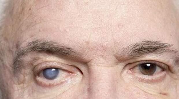 Симптомы и причины возникновения катаракты