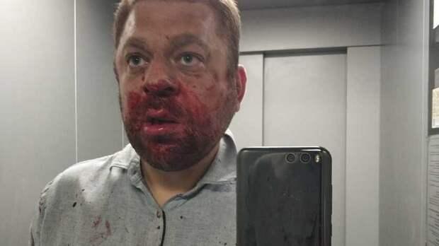 Сегодня утром вХМАО избили депутата Антона Пантина