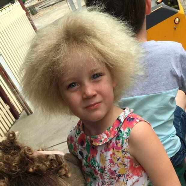 5 милых фото девочки с синдромом нерасчёсываемых волос