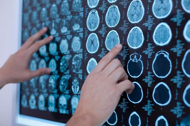 Онколог назвал смертельную опасность головной боли