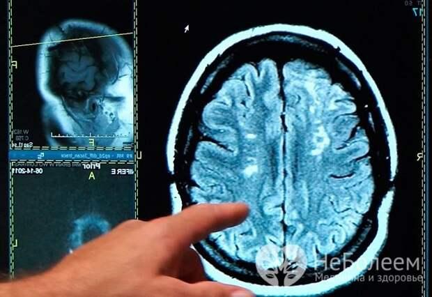 Исход инсульта во многом зависит не только от величины поражения, но и от того, какая именно область мозга задета