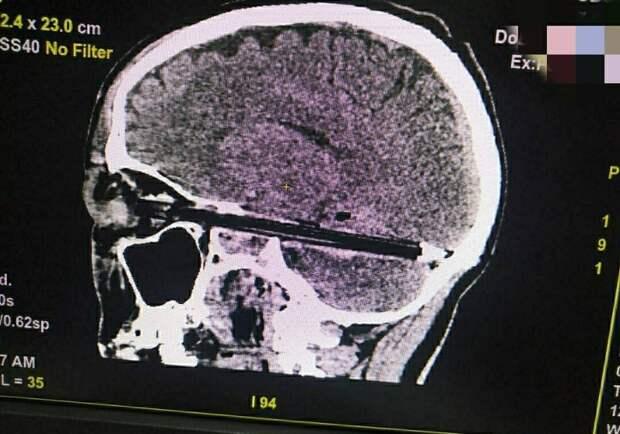 СК в Ростове начал проверку после смерти мужчины с шариковой ручкой в мозгу