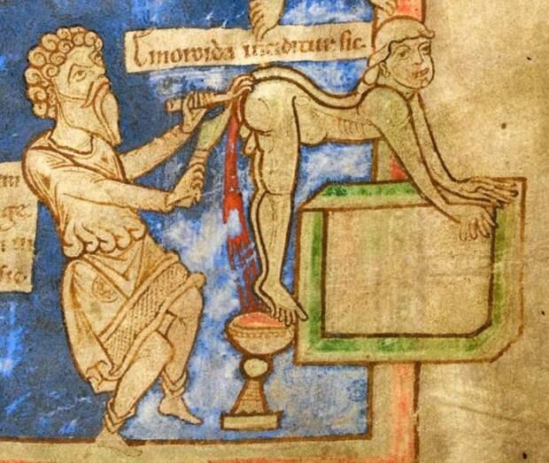 Геморрой: лечим раскаленным металлическим стержнем медицина прошлого, медицинские истории