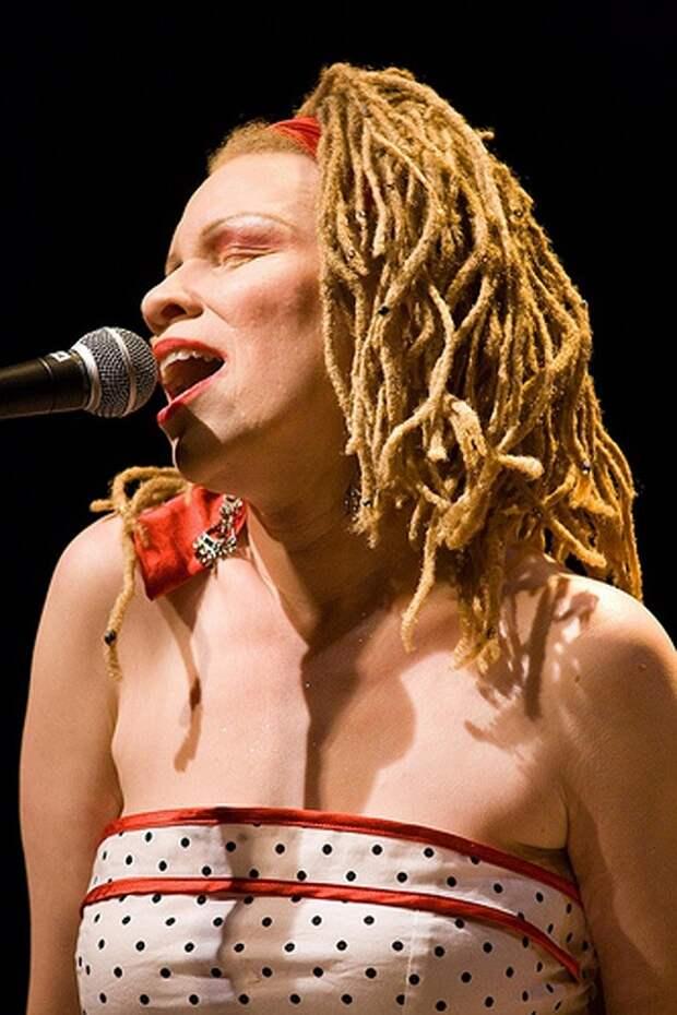 Альбинизм: жизнь «белых ворон» между мифами и реальностью