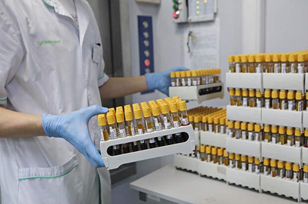 В России выявили 9328 новых случаев заражения коронавирусом