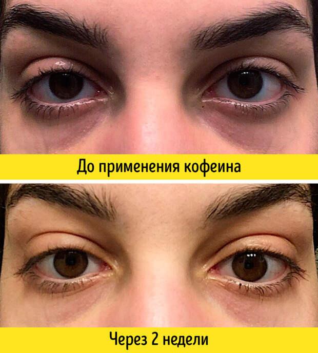 10компонентов, без которых антивозрастная косметика неработает (Спойлер: многие можно купить отдельно)