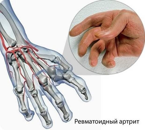 Ревматоидный артрит пальцев рук: 6 первых симптомов