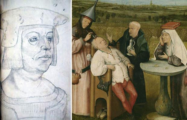 Филипп Бургундский/ фрагмент картины «Извлечение камня глупости»
