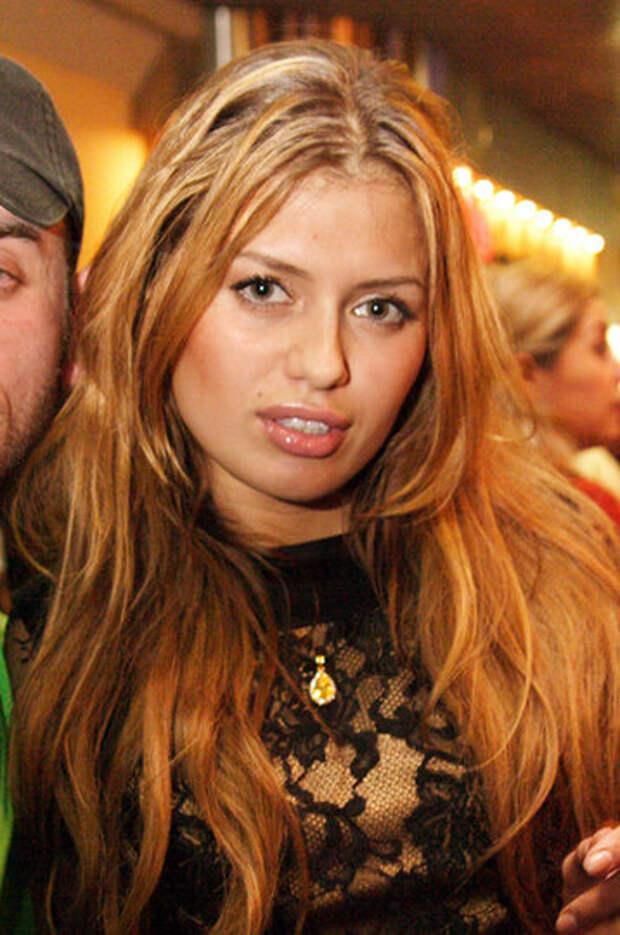 Алена Шишкова, Мерьем Узерли и другие звезды, которые перестарались с увеличением губ