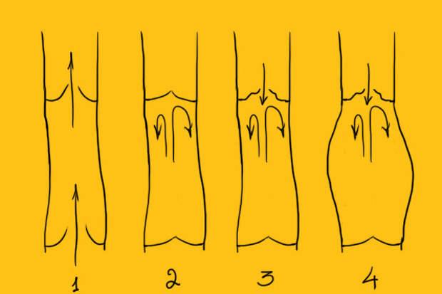 Как оперируют варикозное расширение вен - Как это сделано, как это работает, как это устроено