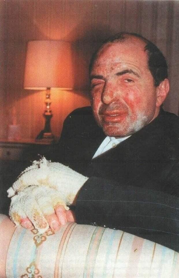 Борис Березовский после покушения, 1994 год