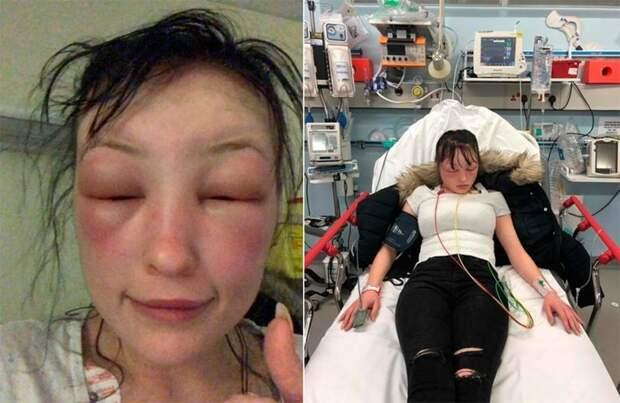 Девушку трижды госпитализировали после домашней покраски волос аллергия, в мире, волосы. покраска, люди, опухлость, реакция
