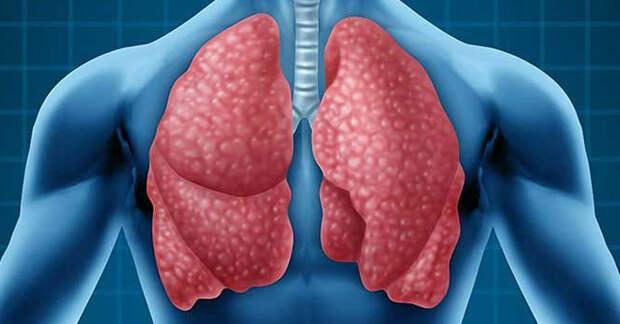 Бронхопневмония: причины, лечение и профилактика