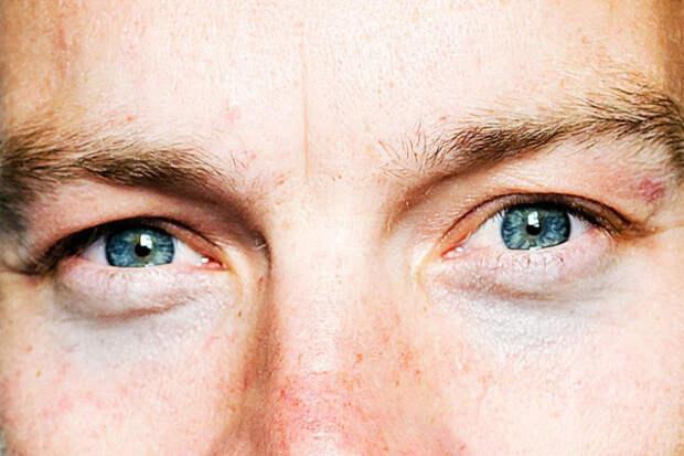 Индийский врач-диетолог рассказала о том, как убрать мешки под глазами