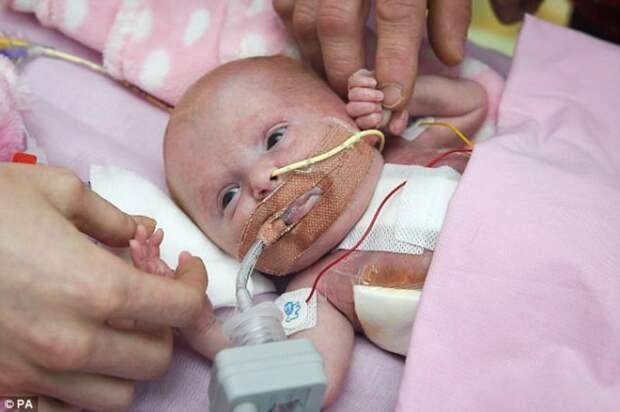 Британские врачи спасли девочку, родившуюся с сердцем вне тела врачи, дети, младенец, новости, операция, патология, сердце, фото