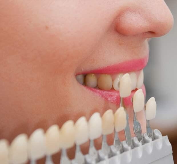 Идеальная голливудская улыбка возможна только с помощью виниров. /Фото: stomatology.sumy.ua