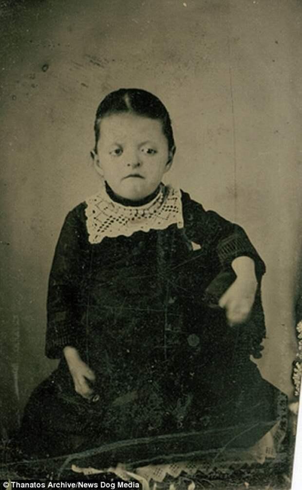 Очевидно, у девочки синдром Аперта. Фотография была сделана в 1870-х, однако болезнь впервые описали лишь в 1906 году деформация, люди