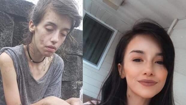 20 фото людей «до и после» того, как им удалось справиться с зависимостью