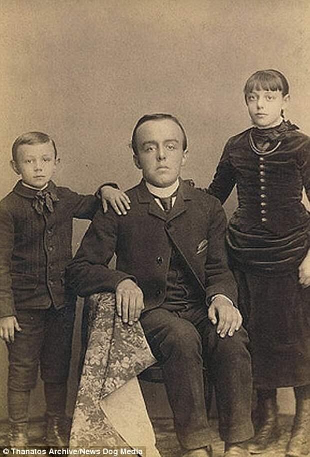 Особенно популярны были дети аномальных размеров деформация, люди