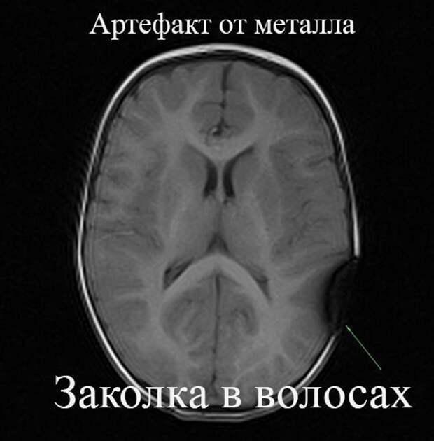 Можно ли делать МРТ с металлом в теле? (разбор) МРТ, Томография, Обследование, Медицина, Стоматология, Познавательно, Технологии, Видео, Длиннопост