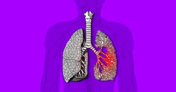 В России туберкулёзом заболевают 60 тысяч людей в год: 4 факта о том, как так получилось