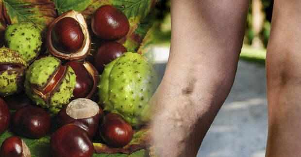 Конский каштан: польза для здоровья и его воздействие на сосуды и вены