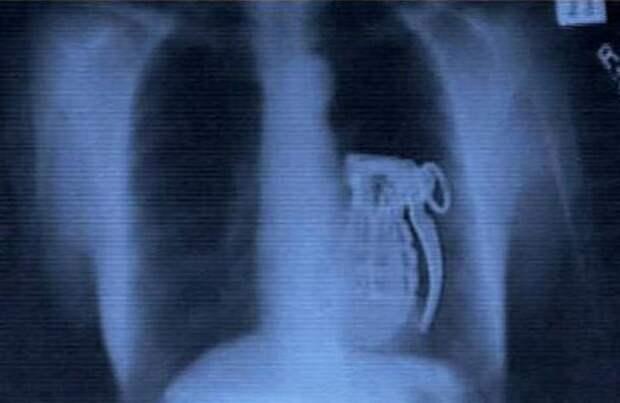 Самые невероятные предметы, которые были найдены в человеческом теле