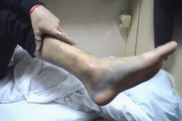Как надо так ходить, чтобы двойной перелом ноги получить