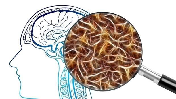 Уникальный препарат против опухоли мозга разработали ученые из Новосибирска
